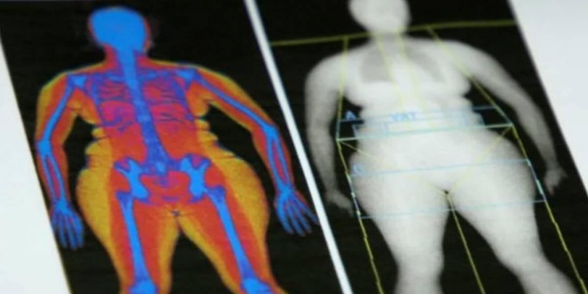 É possível ter um peso saudável, mas excesso de gordura no corpo?