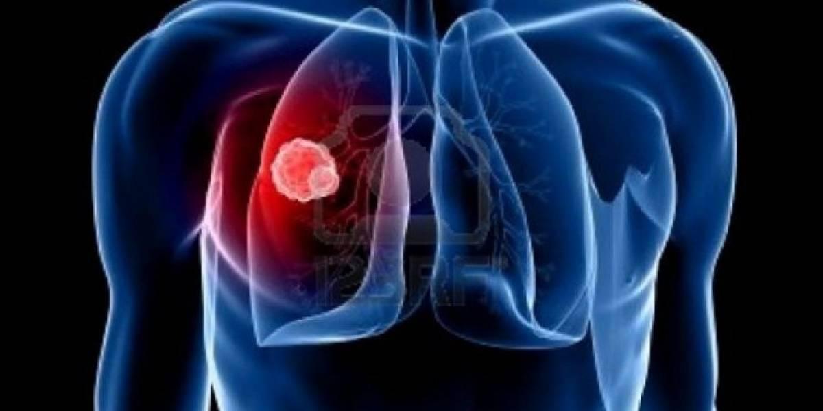 ¿Sabes cómo prevenir el cáncer de pulmón?