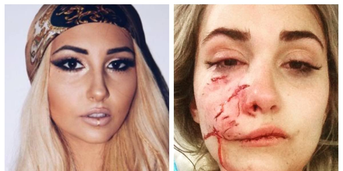 """""""Me parecía al Joker"""": modelo sufrió horrendas heridas tras el ataque de un perro, pero prometió no rendirse y continuar con su carrera"""