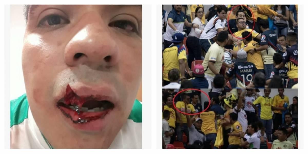 VIDEO: Realizan cirugía reconstructiva a aficionado de Santos tras brutal golpiza en el Azteca