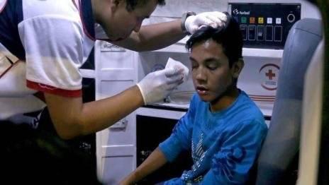 Destrozos en juego de Santos-Toluca Milenio