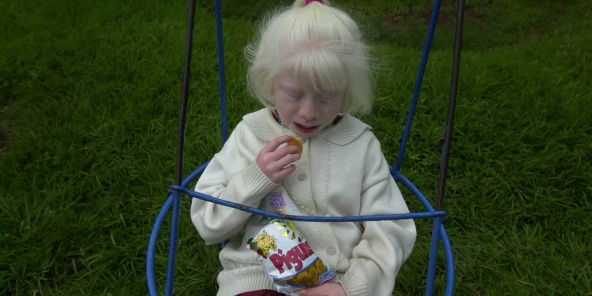 Una pesadilla que no cesa: decapitan a una niña albina como parte de un ritual de magia en África
