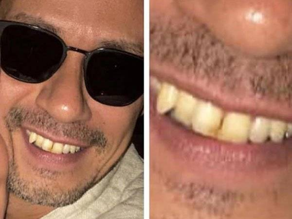 Marc Anthony Redes Sociales Dientes