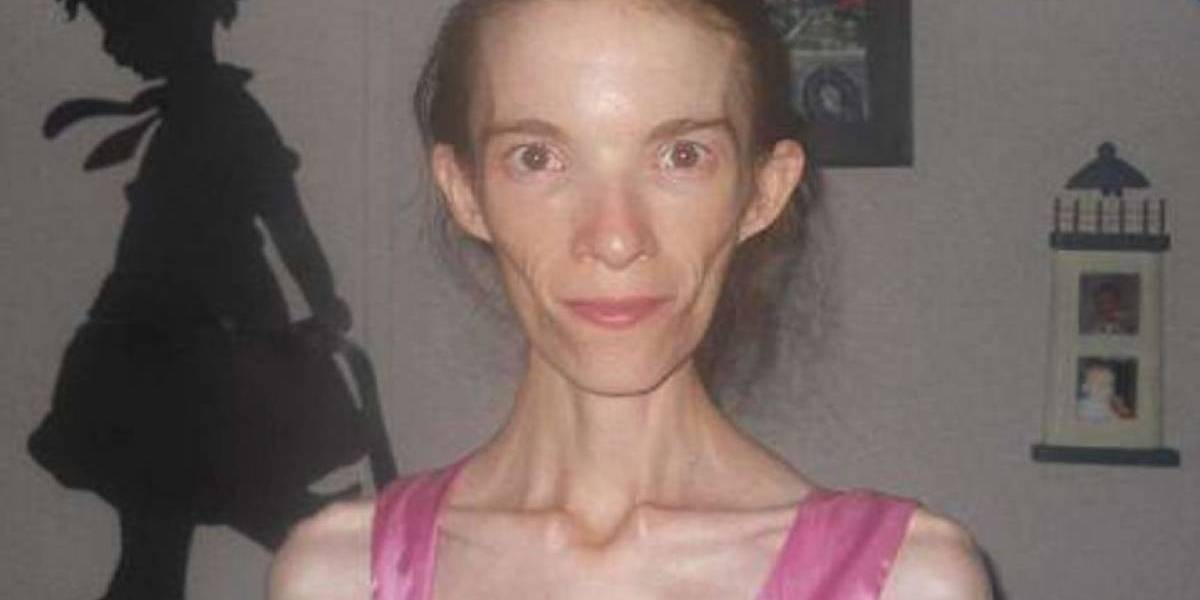 Seguro niega darle tratamiento a mujer con anorexia que solo pesa 26 kilos