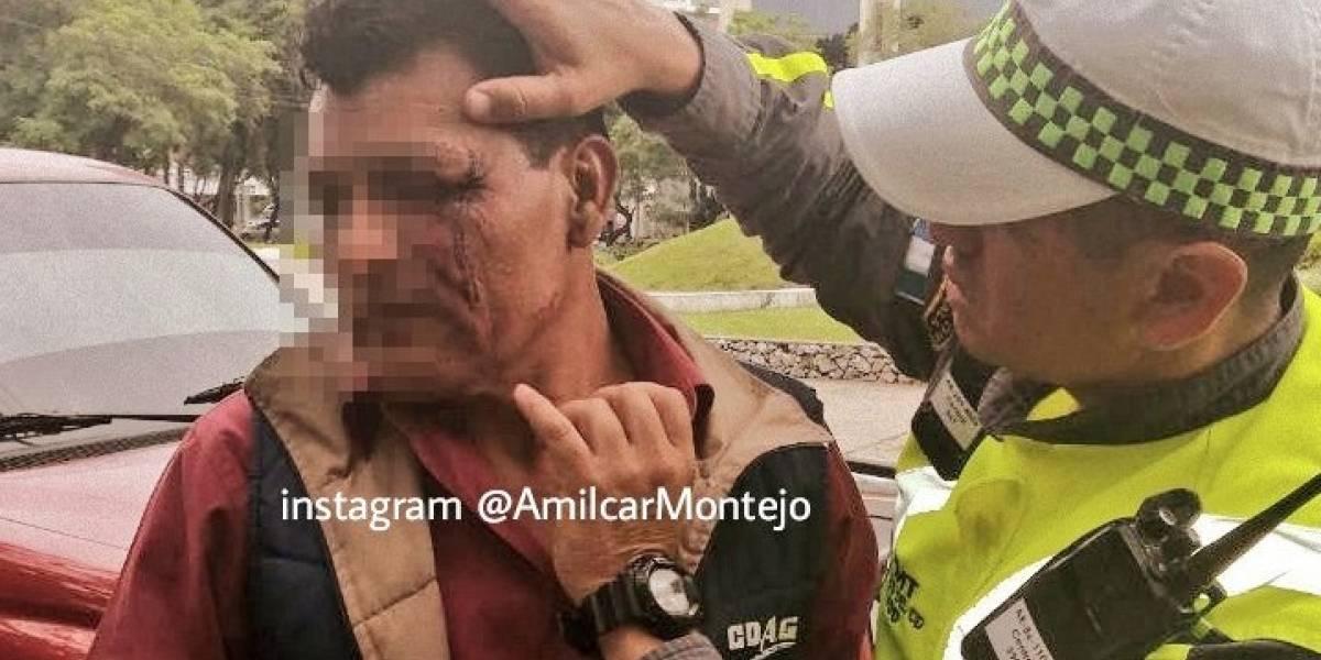 Pitbull ataca a guardia de seguridad en avenida las Américas y terminó herido de bala