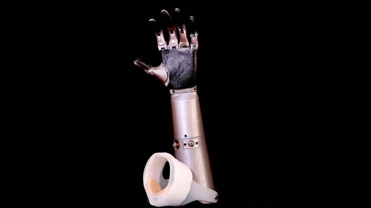 Una prótesis para quienes más la necesiten