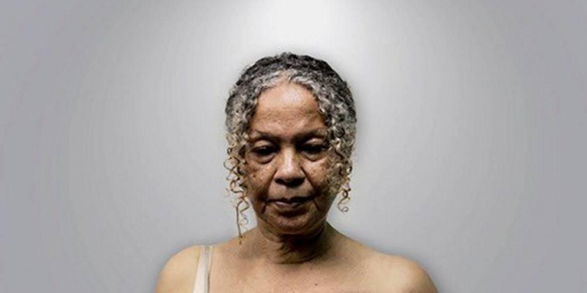 Las desgarradoras imágenes de mujer con cáncer de mama que evidencia la crisis en Venezuela