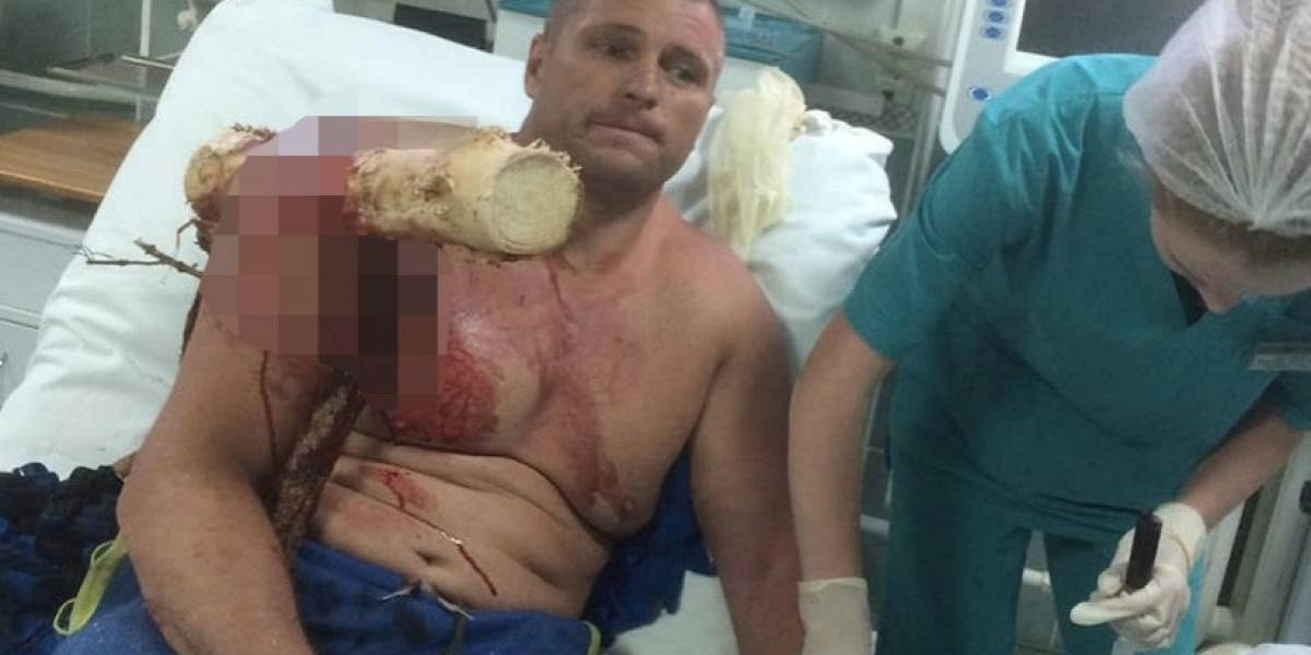 Iba en parapente, cayó y un tronco atravesó su brazo