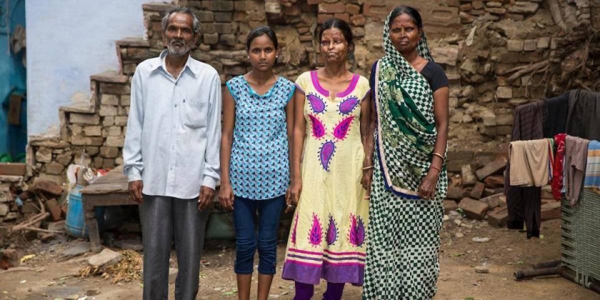 El dramático caso de una madre y su hija que viven con el hombre que les desfiguró el rostro con ácido