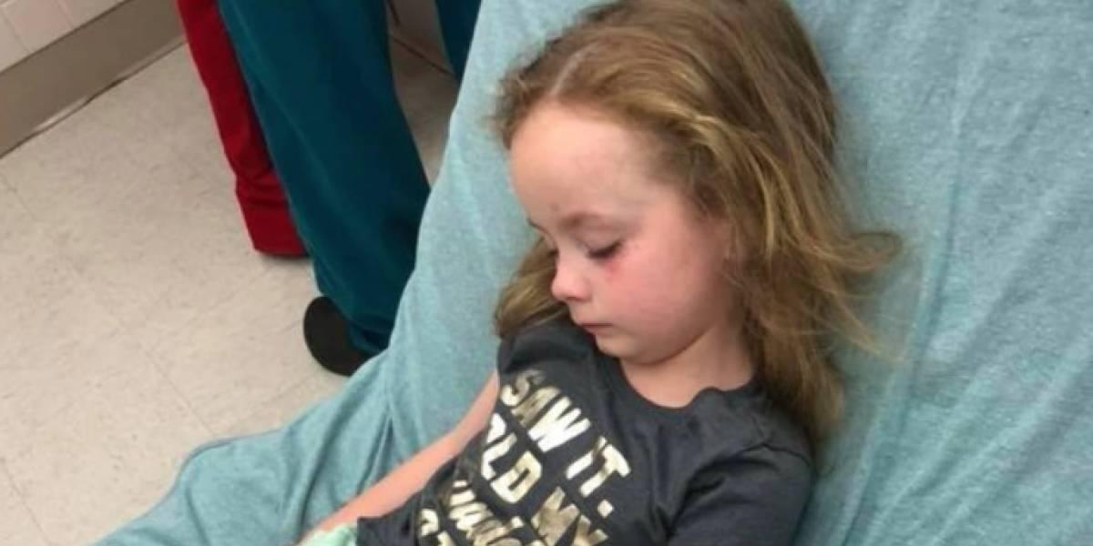 Niña de 5 años queda paralizada por picadura de garrapata