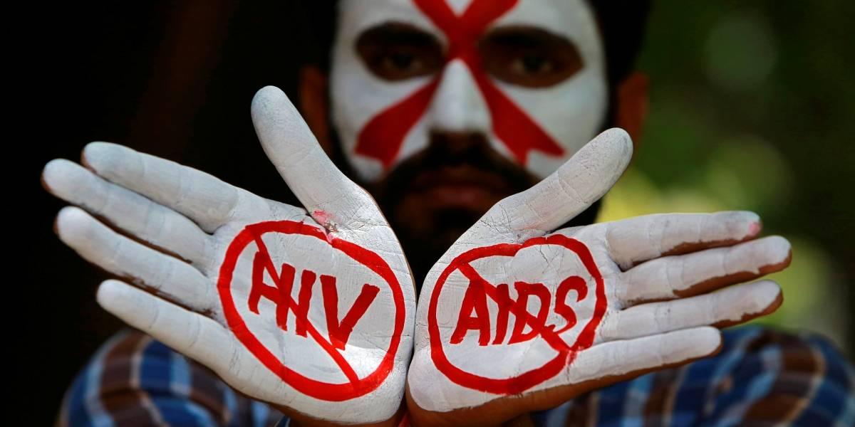 Teste de vacina contra HIV tem bons resultados
