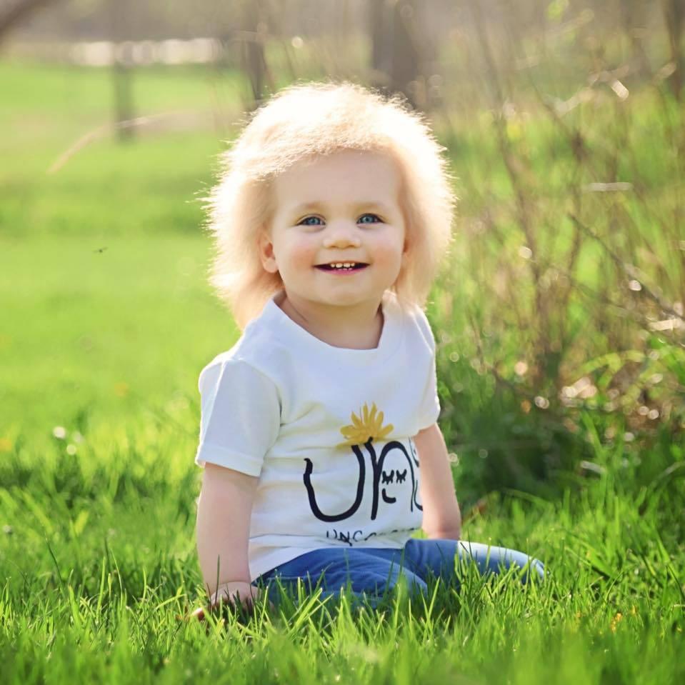 """""""Baby Einstein 2.0"""", la pequeña que tiene una rara condición genética que hace imposible peinar su cabello"""