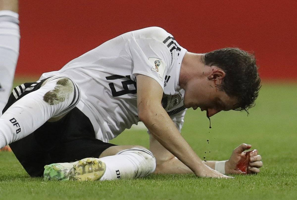 Así quedo el alemán Getty Images-AP