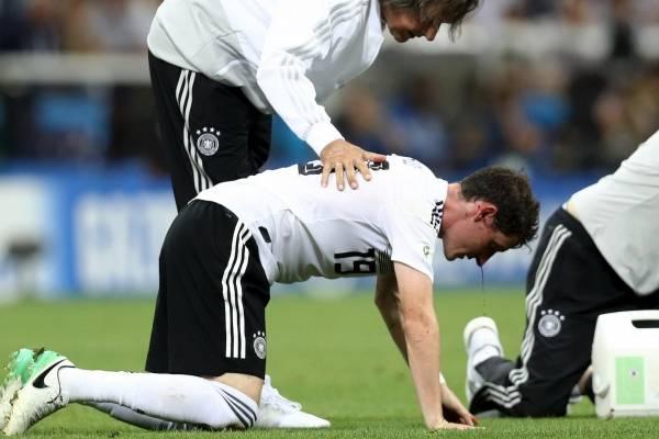 Duro golpe a Sebastian Rudy en Alemania contra Suecia