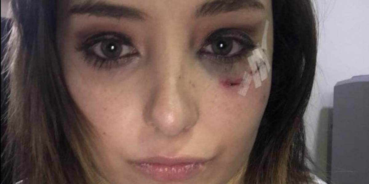 Actor de Televisa golpea a mujer que lo acusó de violación