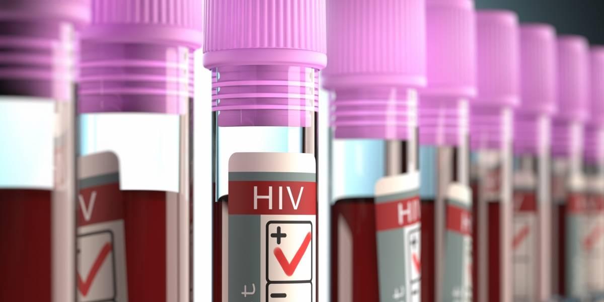 Avances en pruebas, medicamentos y métodos preventivos contra el VIH