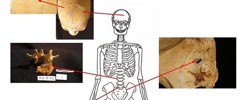 Excavaciones en Egipto revelan que hoy es 100 veces más probable contraer cáncer que en la antigüedad