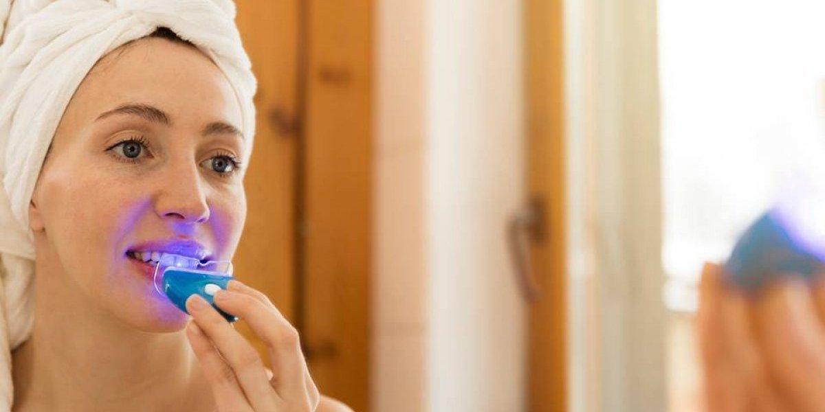 El blanqueamiento dental que puedes hacer desde la comodidad de tu casa