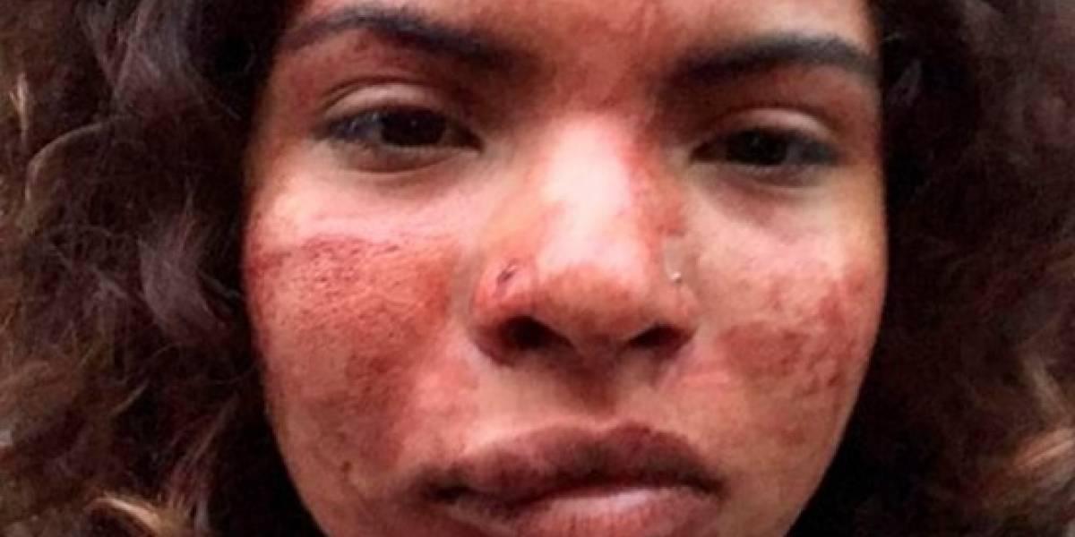 Habló la colombiana víctima de una agresión racista en Portugal