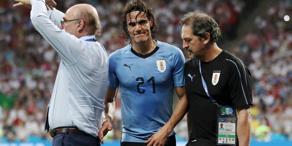 Se confirmó la gravedad de la lesión de Edinson Cavani con Uruguay