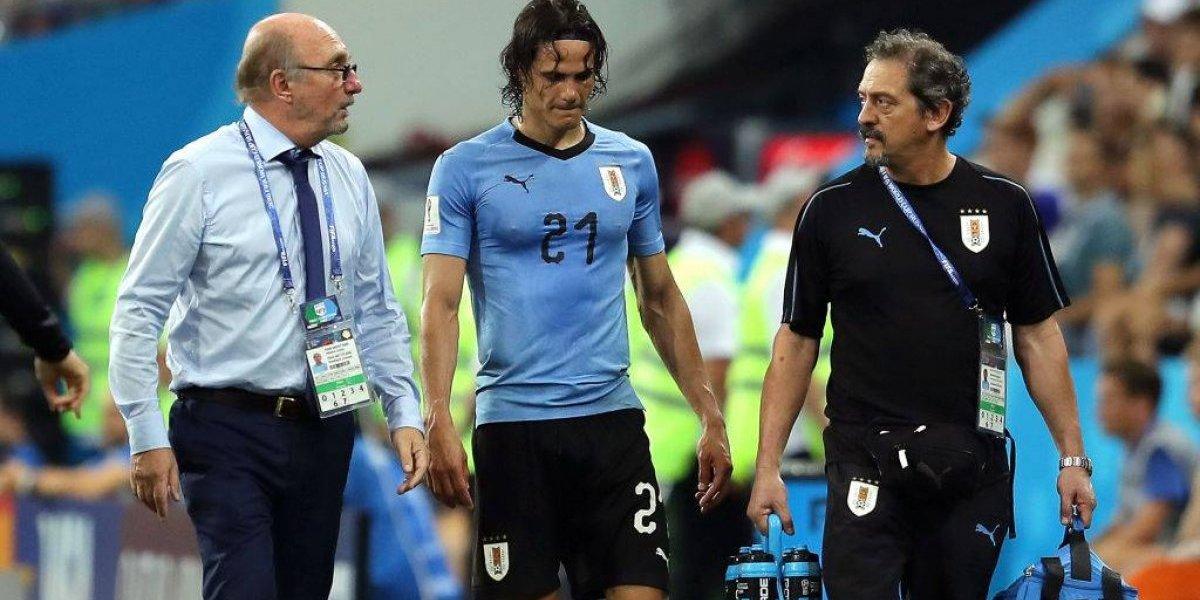 Se complica Uruguay: Cavani está prácticamente fuera del duelo con Francia por los cuartos de Rusia 2018