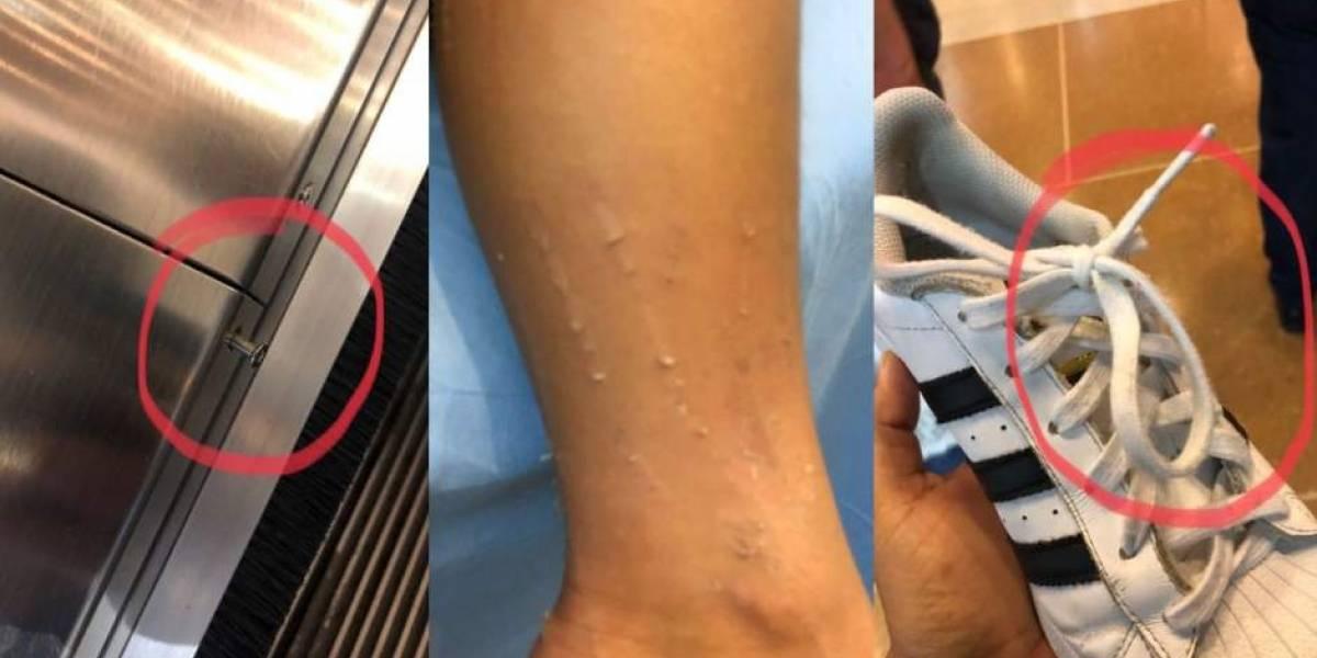 Tornillo salido en escalera eléctrica causó emergencia que involucró a un niño en centro comercial