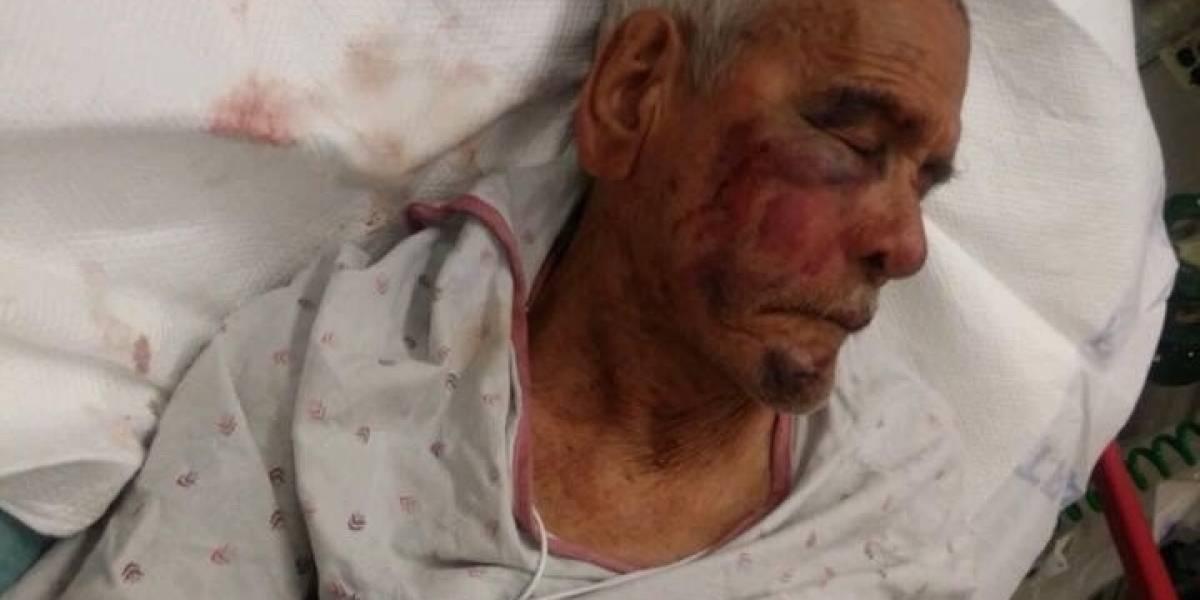 Golpean brutalmente a anciano mexicano migrante en Estados Unidos