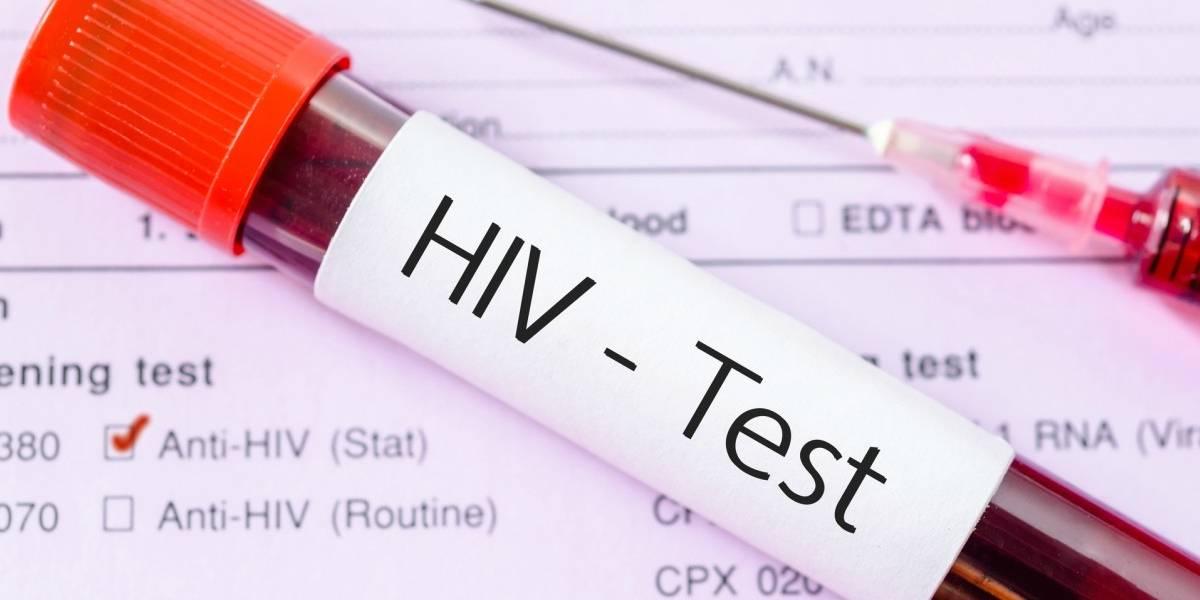 ¿Cada vez más cerca? Los prometedores resultados de una vacuna experimental contra el VIH