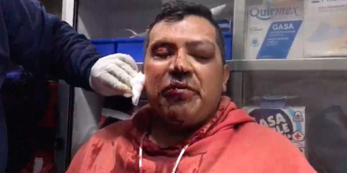 PGJ identifica a policías que agredieron a fotógrafo