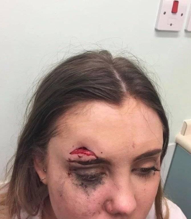 La joven pasó toda la noche en el recinto médico