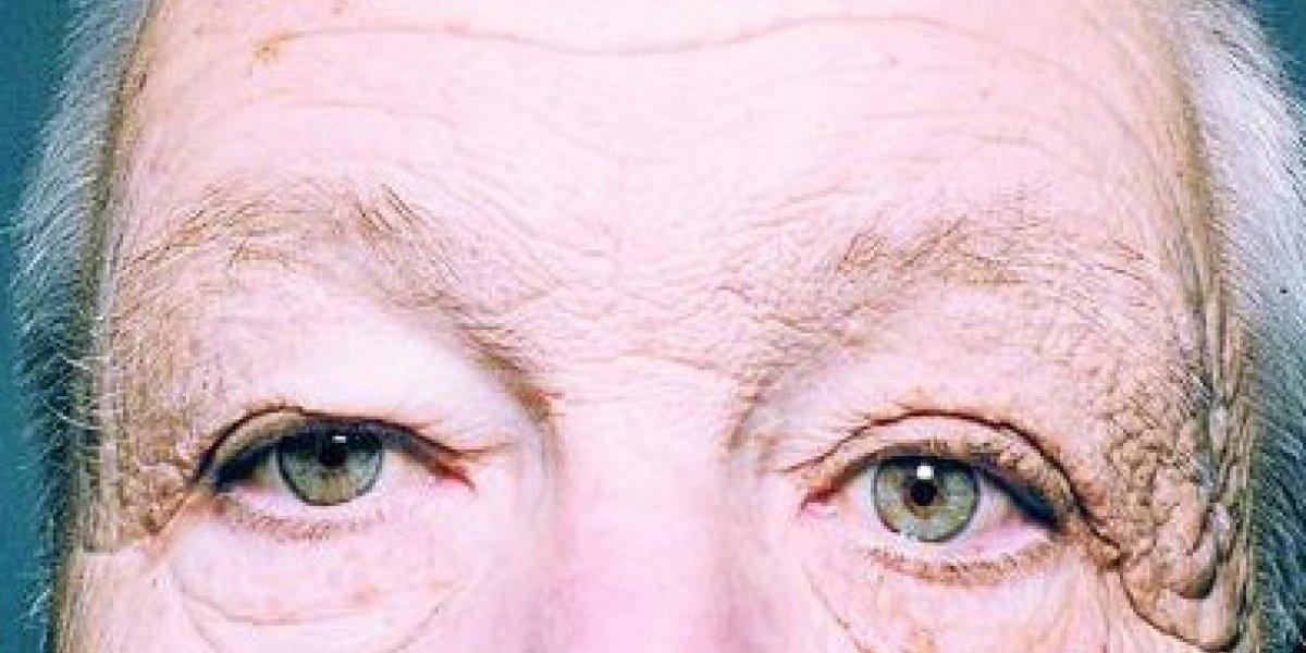 A echarse bloqueador: Camionero muestra los estragos del sol que lo hicieron envejecer 20 años sólo en la mitad del rostro