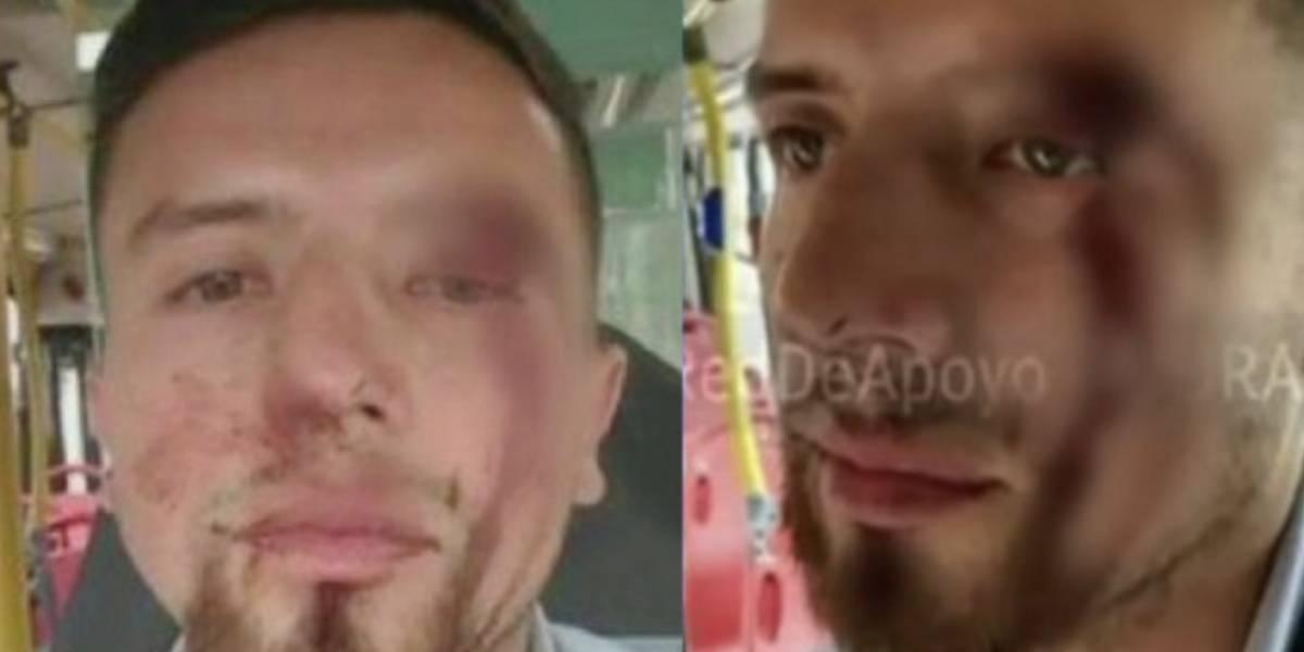 Conductor del Sitp recibió brutal golpiza por salpicar a un hombre sin querer luego de pasar un charco