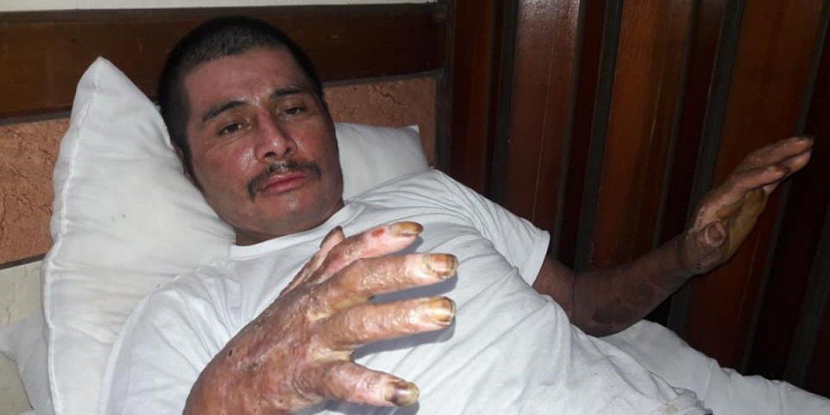 Hombre que sufrió quemaduras en casi todo el cuerpo narra momentos previos a la erupción