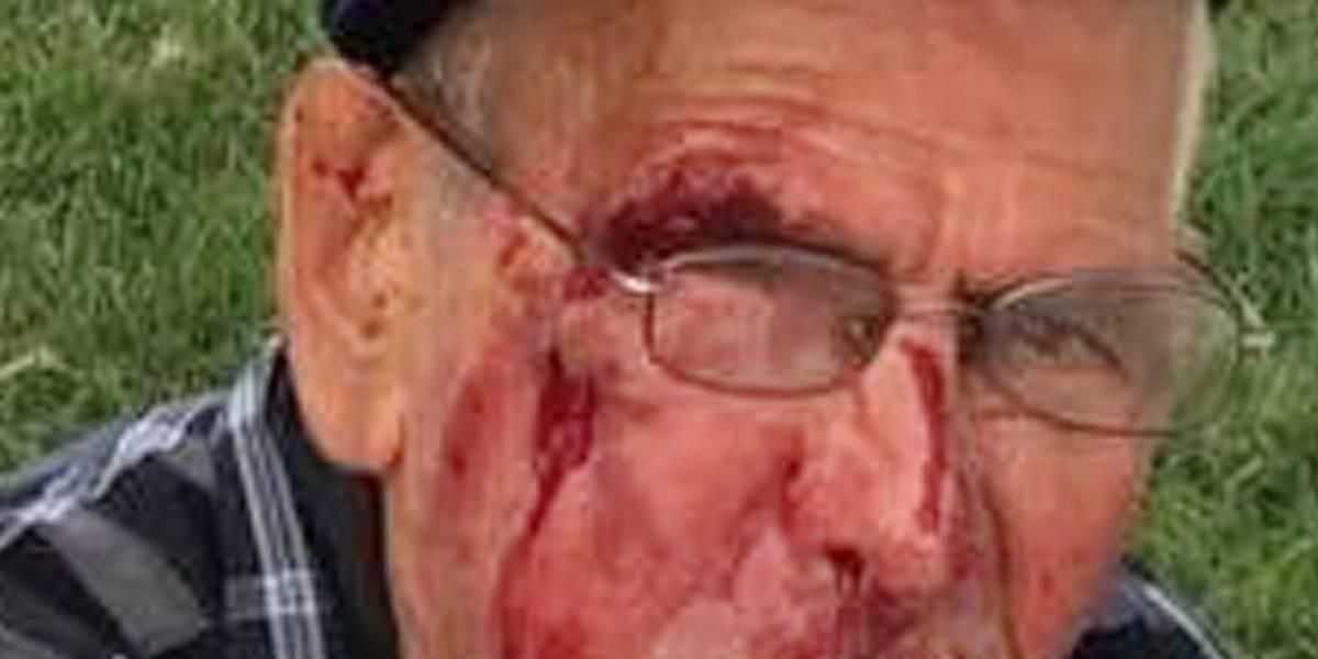 Anciano golpeado con bloque por mujer en Los Ángeles agradece a testigo