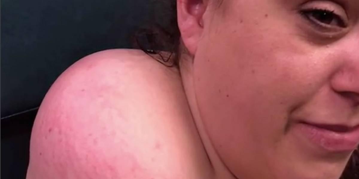 """Creció por tres años: el desagradable momento en que doctora enfrenta una """"espinilla mutante"""" en el cuello de su paciente"""