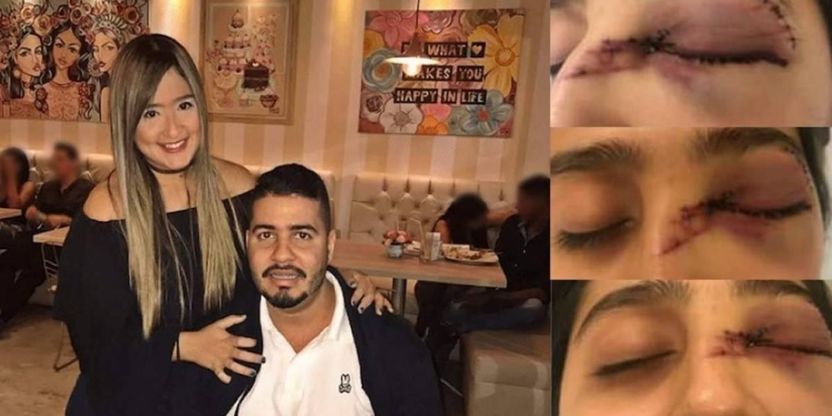 Le propinó brutal golpiza a su esposa que deberá ser sometida múltiples cirugías en su rostro