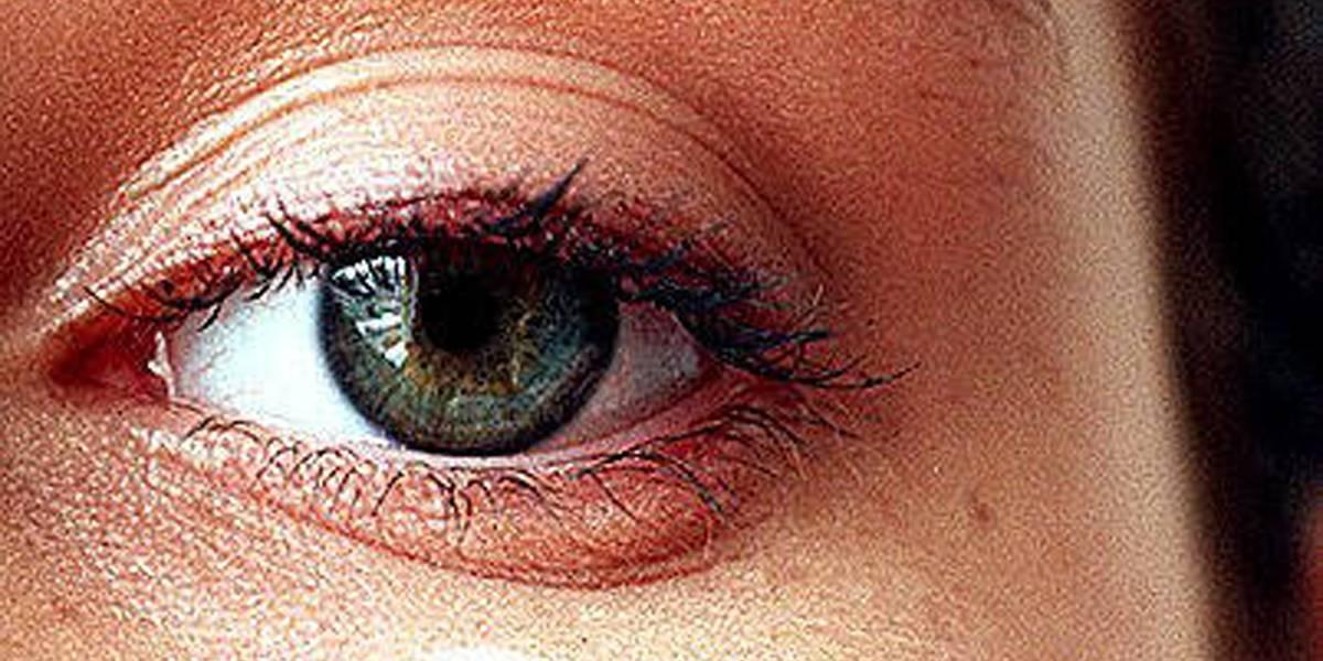 Aprenda técnicas para amenizar as olheiras