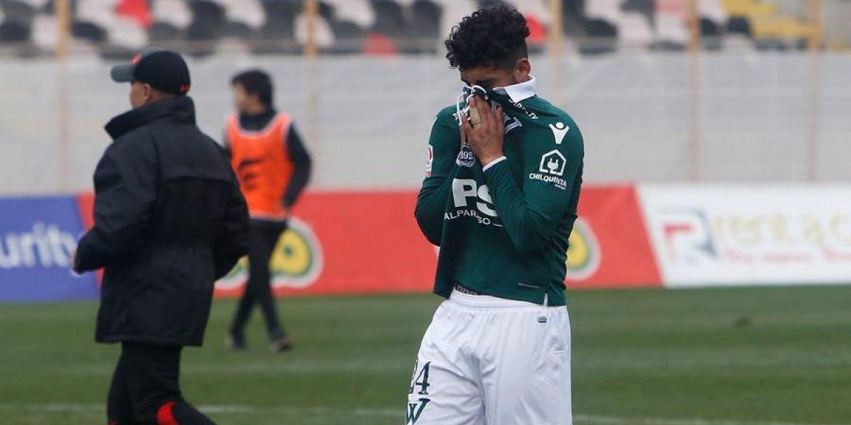 Wanderers volvió a perder y se complicó aún más en la Primera B