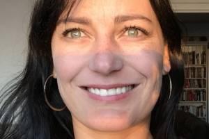https://www.metroecuador.com.ec/ec/bbc-mundo/2018/07/23/detras-de-mi-cara-hinchada-pude-ver-que-seis-de-mis-dientes-frontales-ya-no-estaban-la-pesadilla-de-mi-sonrisa-perfecta.html