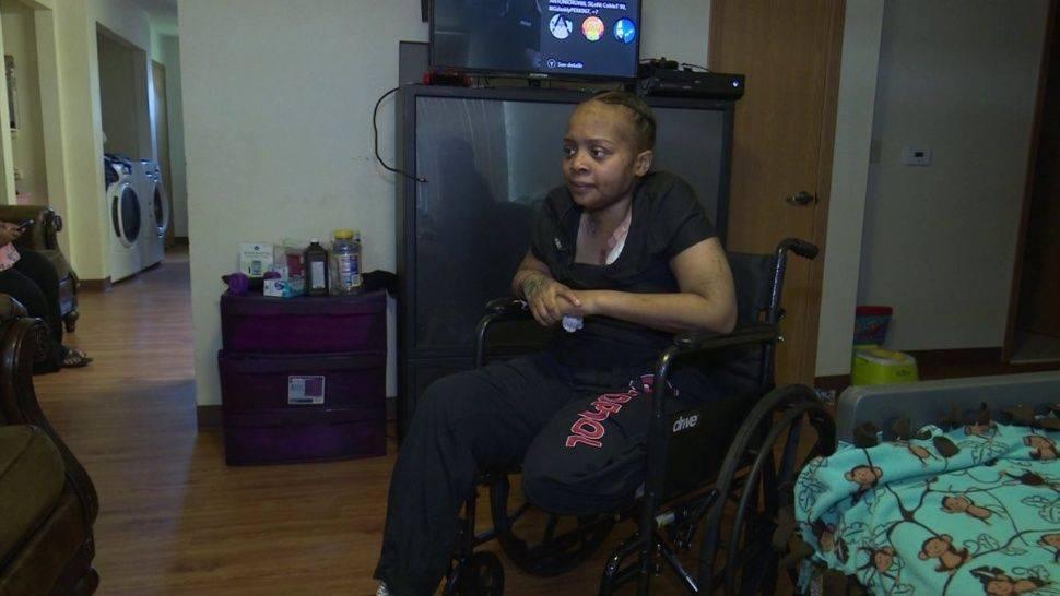 A una mujer la mordió una araña y terminó perdiendo una pierna