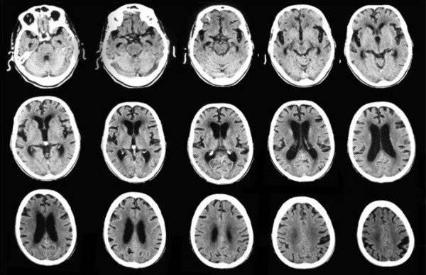 Extraen huevos de parásitos del cerebro de una niña