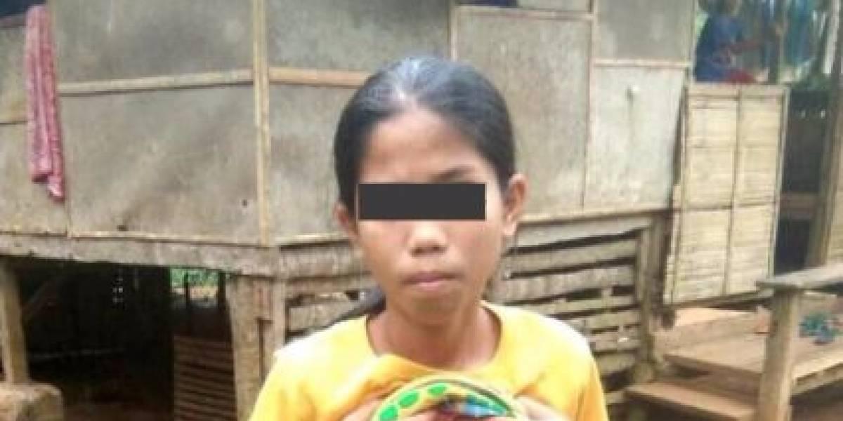 """Adolescente lleva 14 años viviendo con un """"gemelo parásito"""" y ahora por fin será sometida a una operación para extirparlo"""