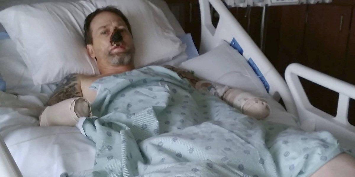 Hombre sufre amputación de extremidades por lamida de perro