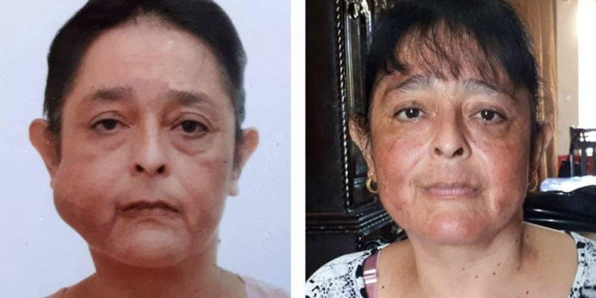 Mujer recupera su sonrisa tras extirpación de tumor en su rostro