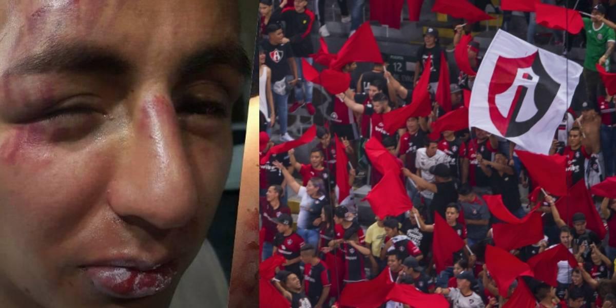 Policías y afición del Atlas golpean a hinchas de Pumas