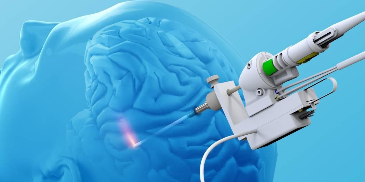 Nuevo método láser para tumores cerebrales y epilepsia inoperables