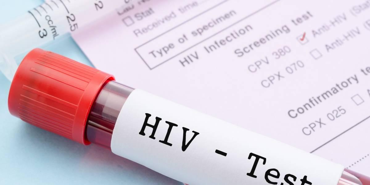 Realizarán pruebas gratuitas de VIH en Carolina