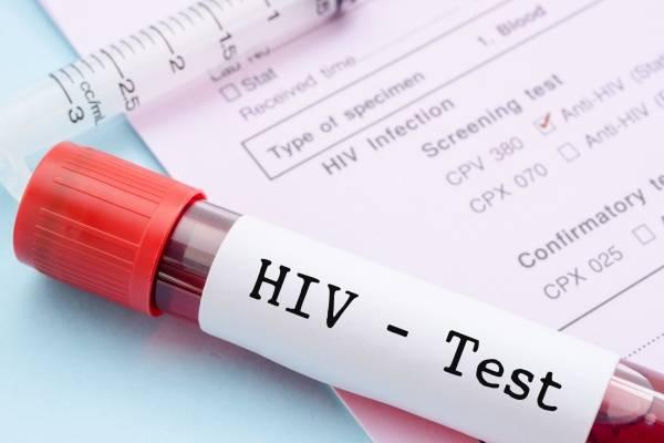 Según el estudio, el tratamiento efectivo para el VIH reduce la transmisión. / Thinkstock