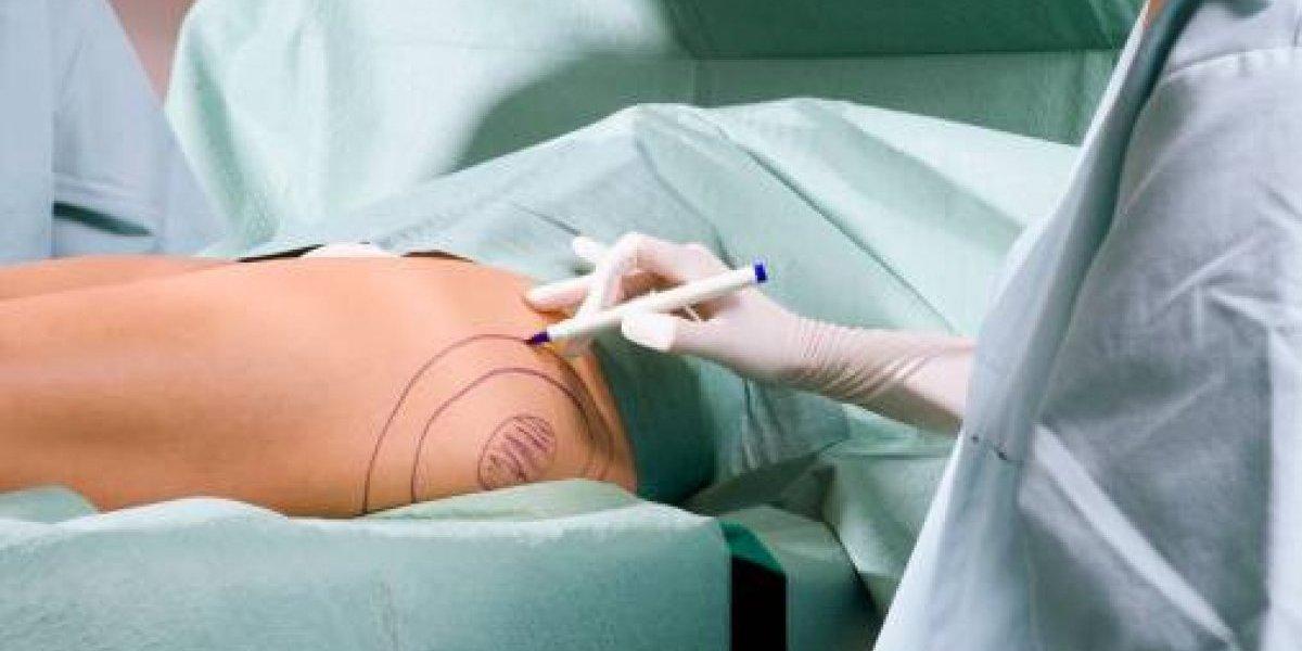 Mujer peruana falleció luego de una cirugía estética en Medellín