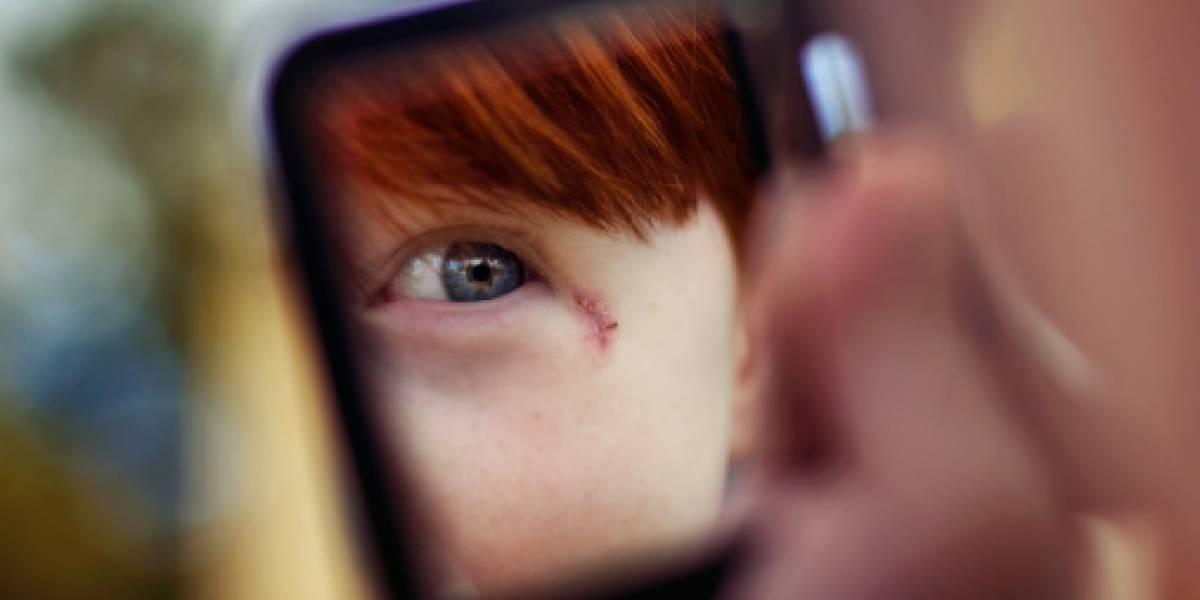 Científicos hallan forma de curar heridas sin dejar cicatrices
